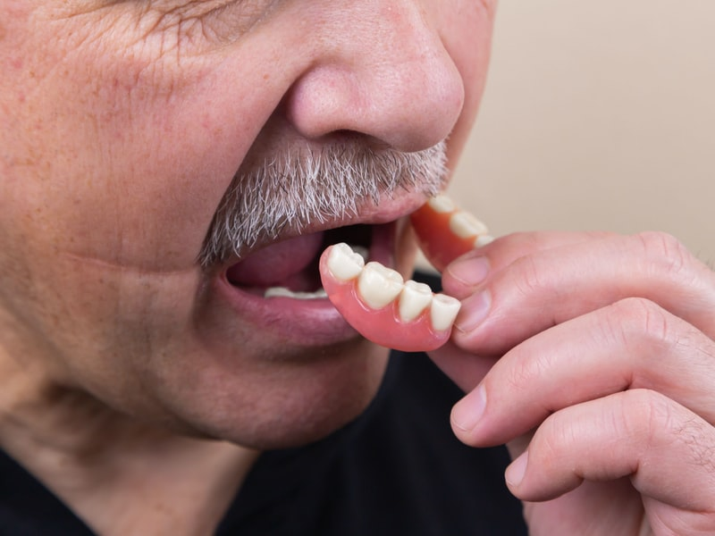 Dental Implants - Why Should I Get Dentures?