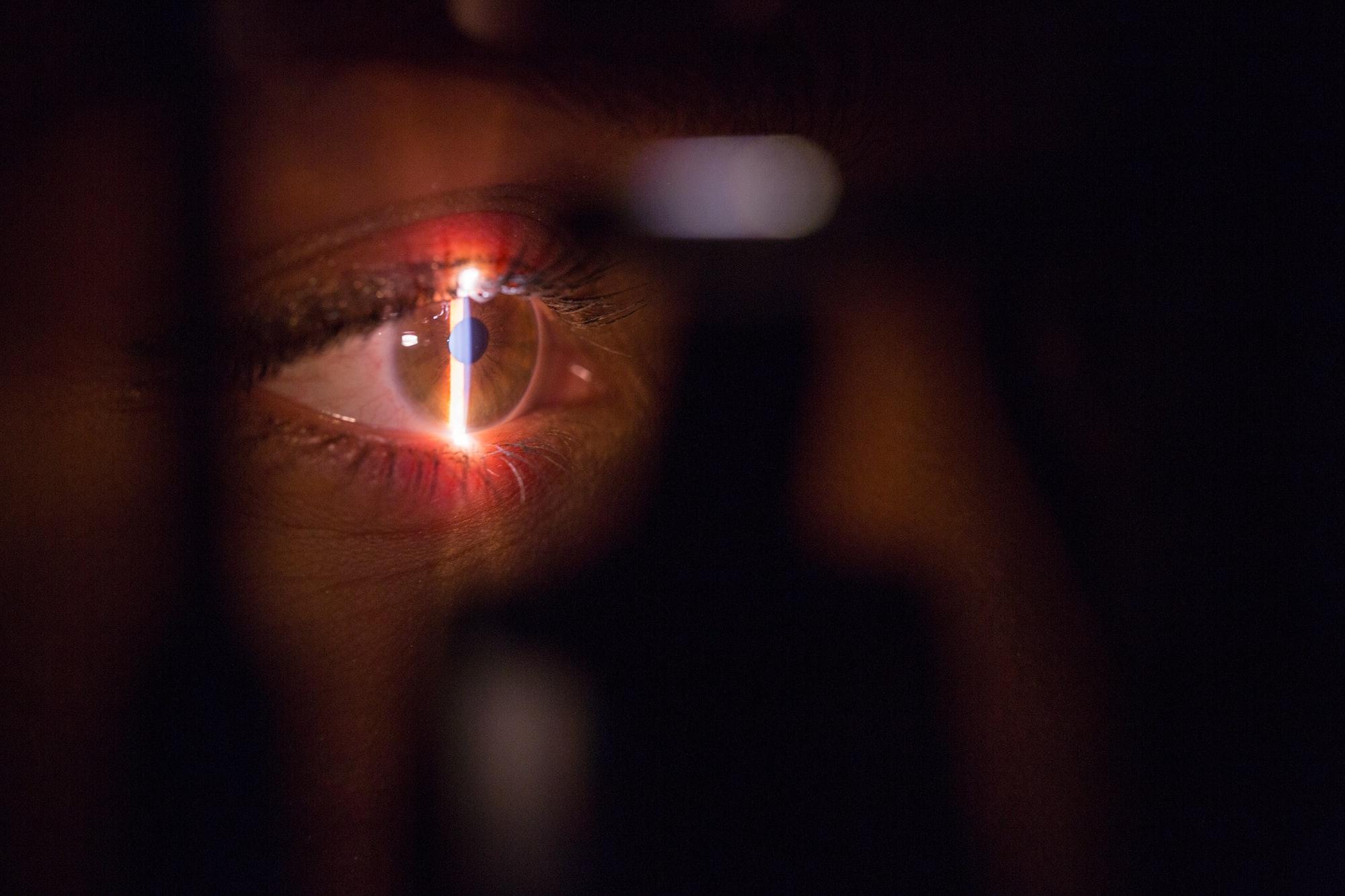 Eye doctor laser scan surgery machine