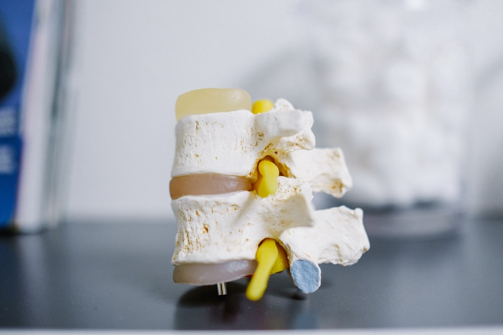 white and yellow cake on white table