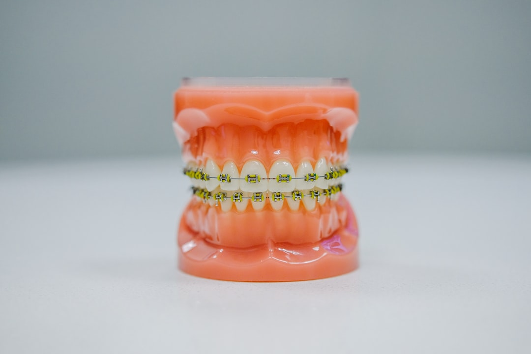 Invisalign vs braces which one is for me