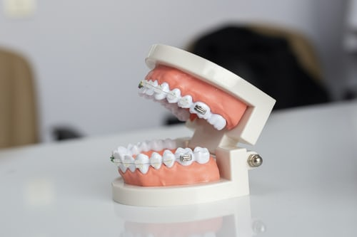 cosmetic dentist thornlands