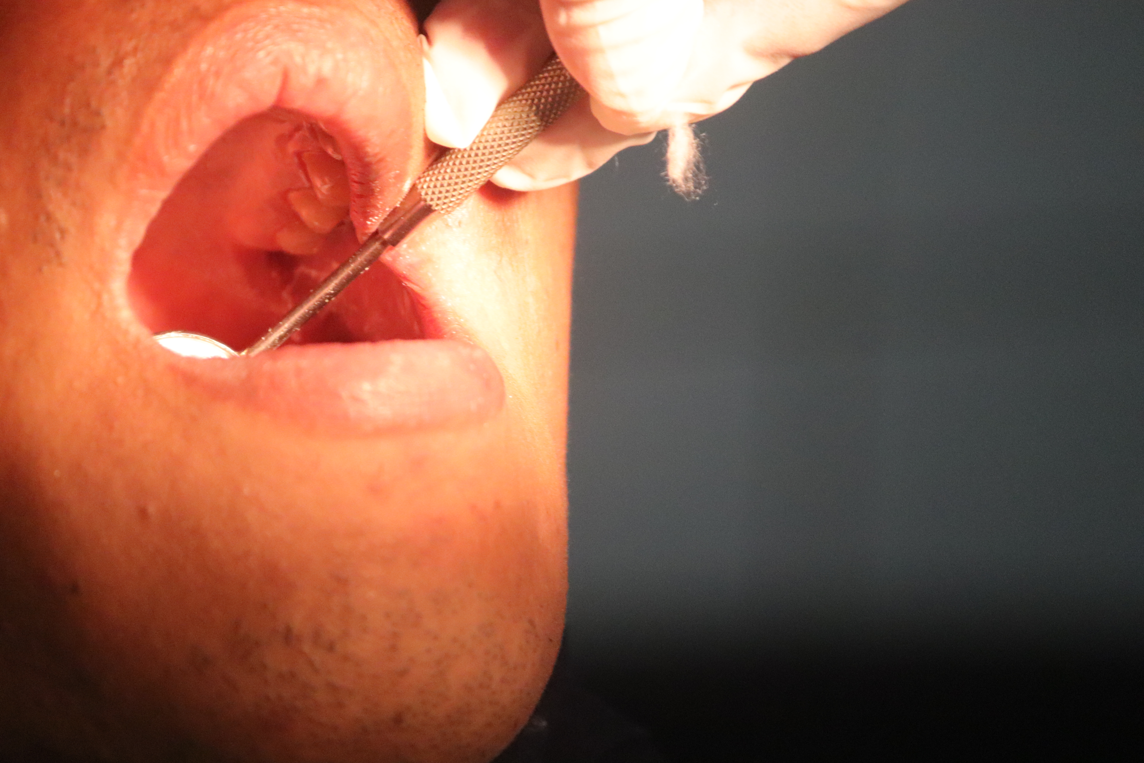 a dentist is filling cavities in a hospital dental clinic
